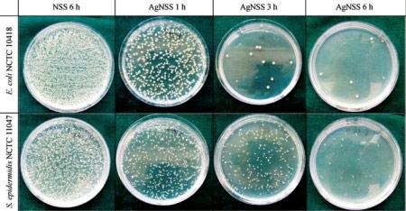 Ученые разработали «нержавейку» с антибактериальными свойствами