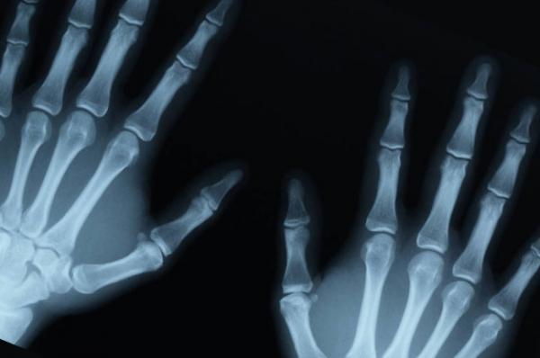 3D-принтер для создания новых костей