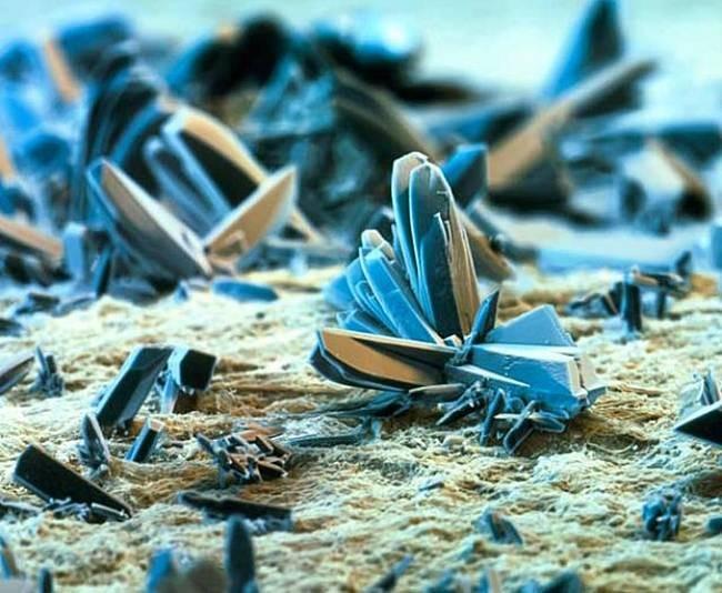 Фото качественной спермы под микроскопом 23 фотография