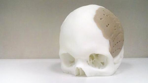 Пациенту заменили черепную кость на протез, напечатанный на 3D-принтере