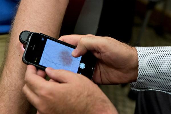 Приложение для смартфона, определяющее рак