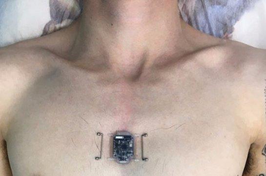 Житель Новосибирска установил себе имплантант-компас
