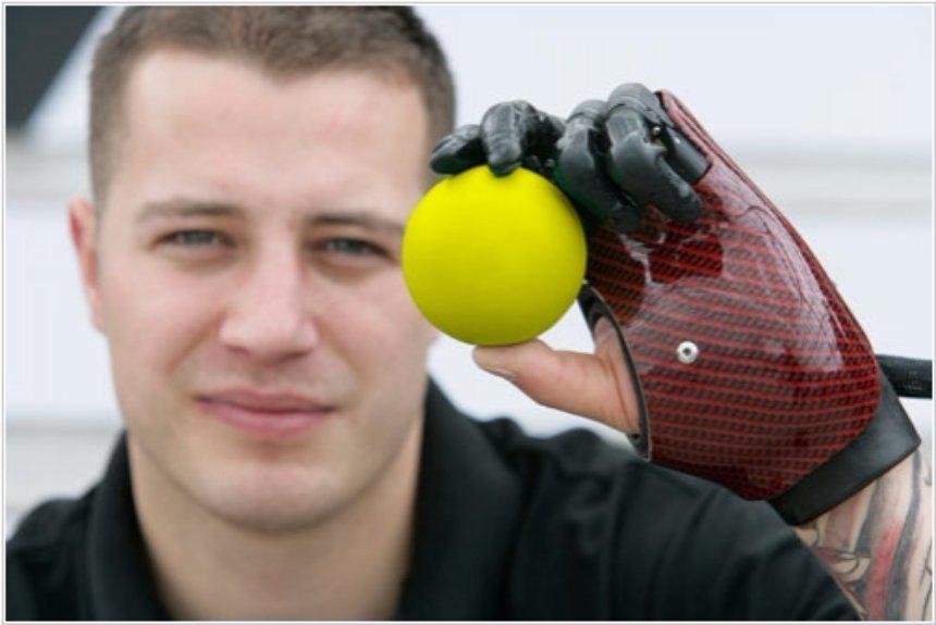 С бионическими протезами уже начали клинические испытания