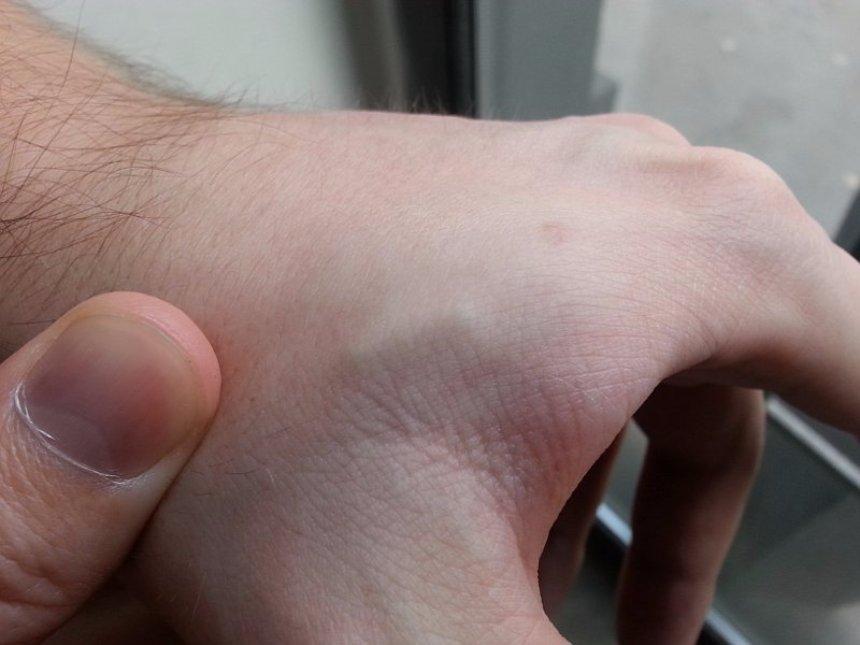 Врач из России вживил себе шестой по счету чип