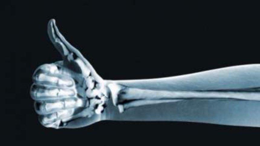 Американские врачи нашли новый способ лечения переломов