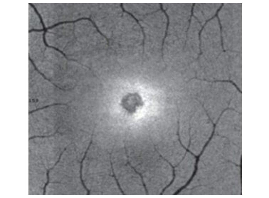 Солнечное затмение оставляет следы на сетчатке глаз