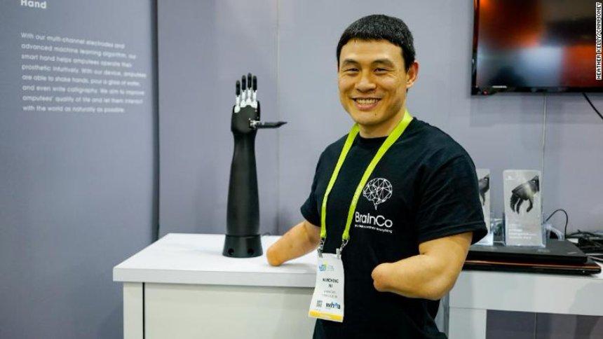 Создана инновационная протезная рука
