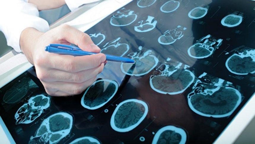 Вероятность возникновения инсульта зависит от роста человека