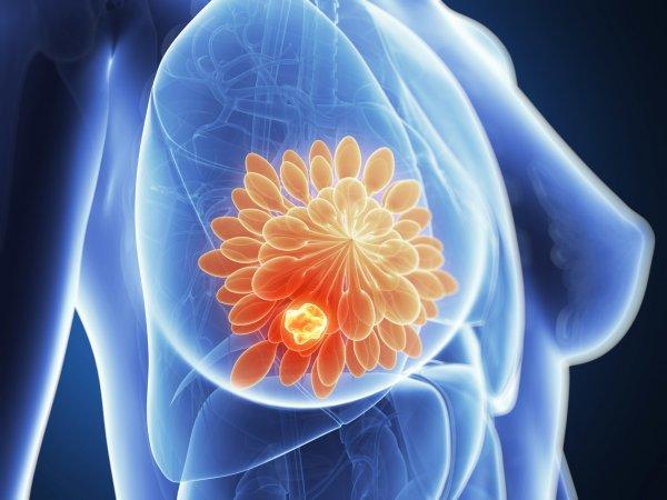 Ученые нашли способ предотвратить рак груди