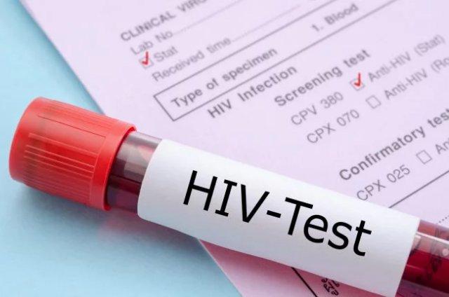 Новая вакцина от ВИЧ показала хорошие результаты в испытаниях на людях