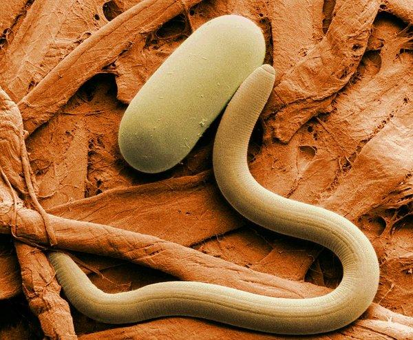 Ученые: регенерация ран может быть запущена кишечными паразитами