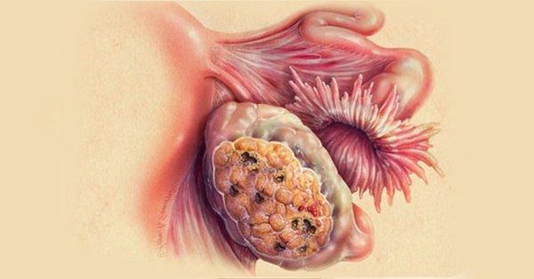 Ученые диагностировали рак при помощи железной проволоки