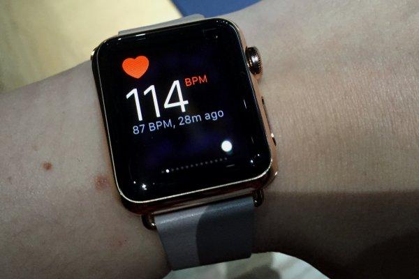 Apple Watch по сердцебиению помогли обнаружить порок сердца