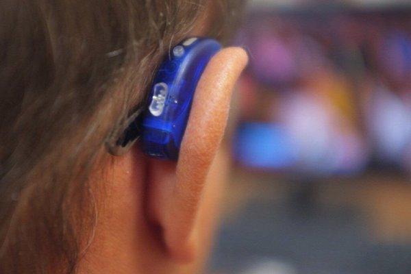 В Тюмени пациентам имплантировали слуховые аппараты в височную кость