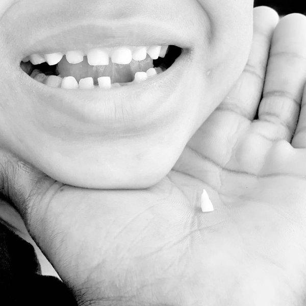 Не выбрасывайте мышкам и феям: Сохранение молочных зубов может исцелить ребенка от смертельных болезней