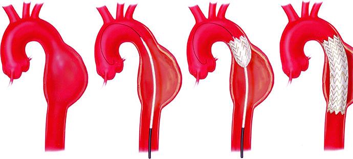 Как лечить аневризму аорты