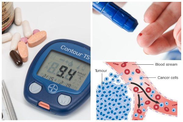 Учёные нашли связь между диабетом и раком